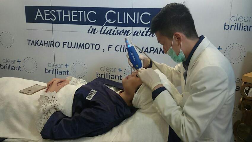 Perawatan Wajah Kekinian dengan Treatment Clear+Brilliant
