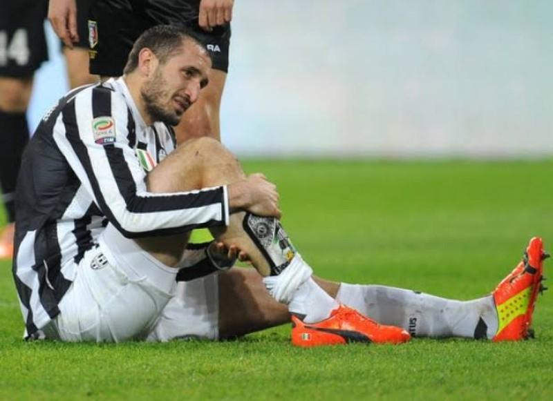 Harus Absen 6 Bulan Akibat Cedera, Chiellini Terancam Lepas Ban Kapten di Juventus